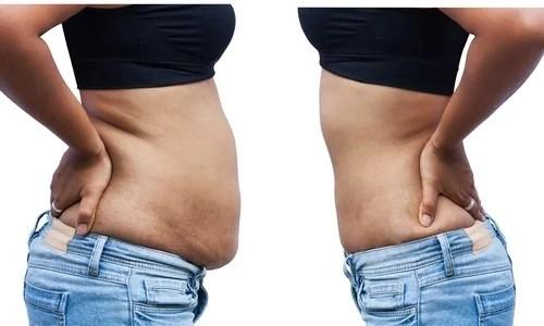 8 Razões pelas quais o abdômen tende a acumular gordura