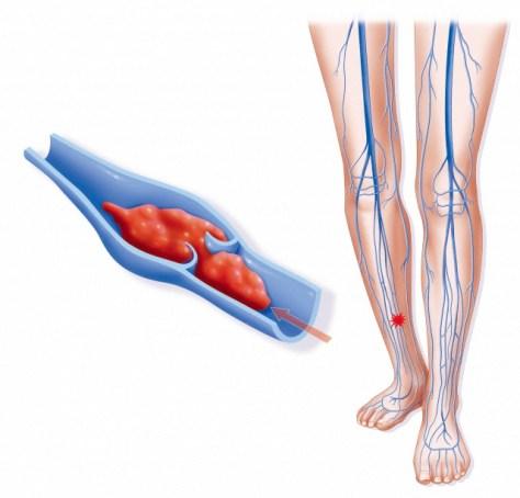 A forma mais comum de trombose venosa é a trombose dos membros inferiores, afectando as veias profundas e de maior calibre da perna, coxa ou pelvis.