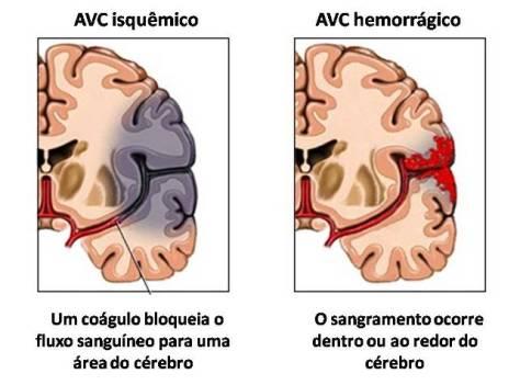 Existem 2 tipos de AVC: o hemorrágico e o isquémico.