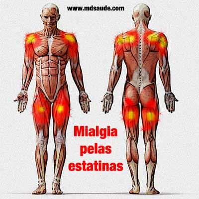 Musculos tipicamente afectados pela mialgia das estatinas