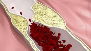 O AVC acontece quando o fornecimento de sangue para uma parte do cérebro é impedido