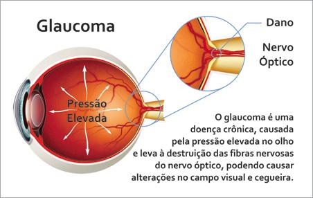 Glaucoma melhorsaude.org melhor blog de saude