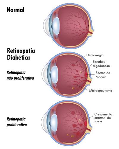 Retinopatia diabetica melhorsaude.org melhor blog de saude