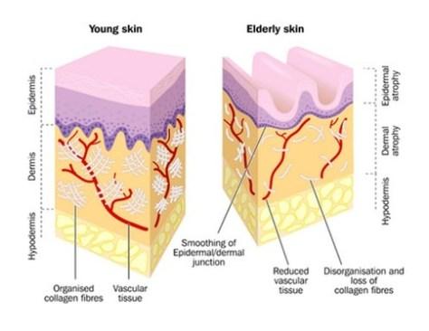 Colagénio na pele jovem vs envelhecida melhorsaude.org melhor blog de saude