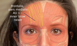 AU1 muscle - frontalis, pars medialis - FACS - Facial Action Coding System
