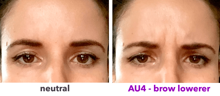 AU4 - brow lowerer - before and after
