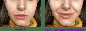 AU13 - sharp lip puller - levator anguli oris -