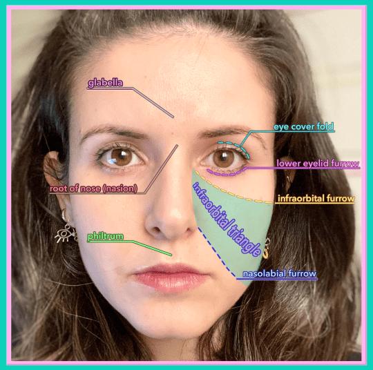 Melinda Ozel - nasolabial furrow deepener - infraorbital triangle