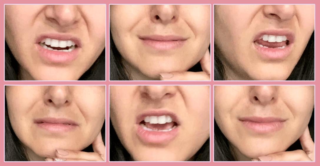 upper lip raiser and nasolabial furrow deepener
