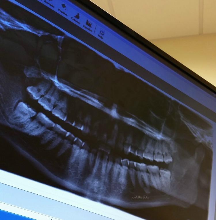 Mellie Dee Wisdom Teeth Removal