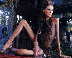 anorexic-model-1