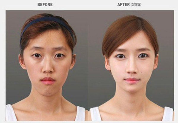 Young Koreans Before and After Extreme Plastic Surgery (50 pictures