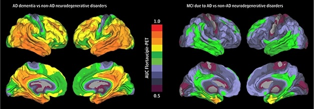 Tau PET imaging shows how AD patients accumulate tau tangles throughout the brain.