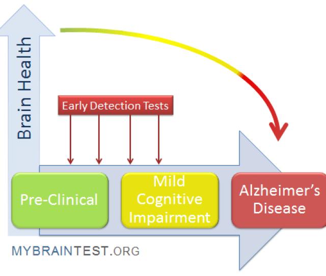 Memory Loss Alzheimers Dementia