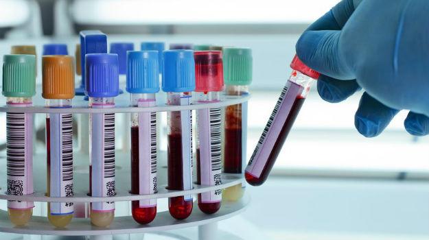 blood-test2