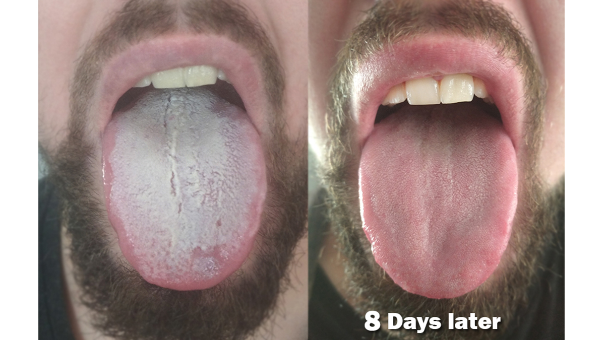 Dysbiosis natural remedy Dysbiosis white tongue - What causes papillomas on eyelid