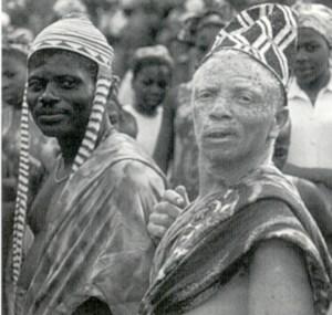 """Albino fra Nigeria med """"skamfering"""" af ansigtshuden"""