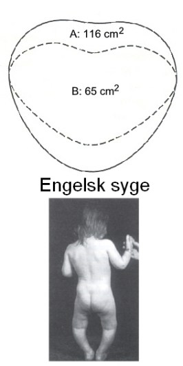 Engelsk syge (rachitis). A angiver bækkenmål hos en normal kvinde, B hos en kvinde med engelsk syge. Nederst ses deformerede knogler hos et barn med sygdommen