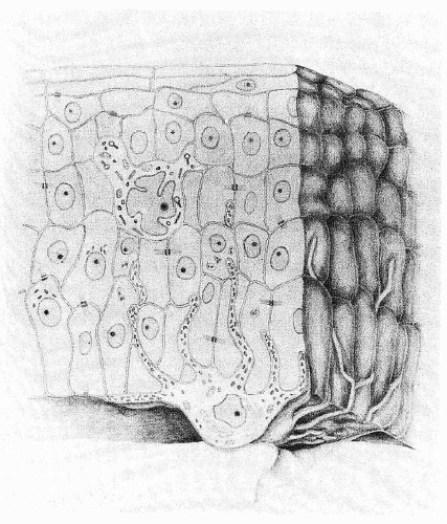 Udsnit af overhud visende én melanocyt blandt keratinocytter. Nederst t.v. en keratinocyt hvor melanosomerne danner en beskyttende hætte over cellekernen. Midt i overhuden ses en Langerhans-celle, der har betydning for immunforsvaret