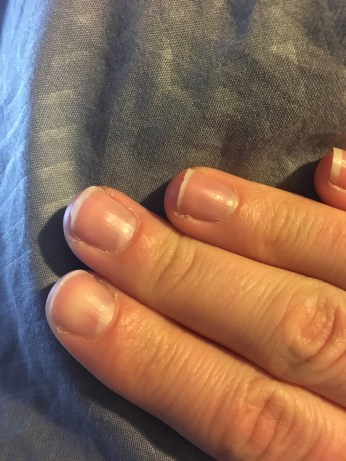Nails that are a hot mess.