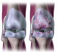 pijn in knieholte oorzaken van pijn