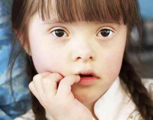 portrait of girl with down syndrome