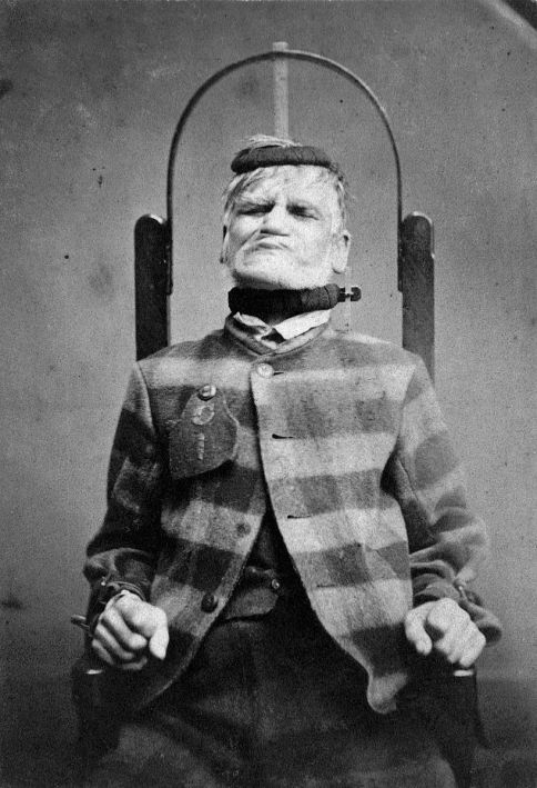 man in restraint chair in an asylum