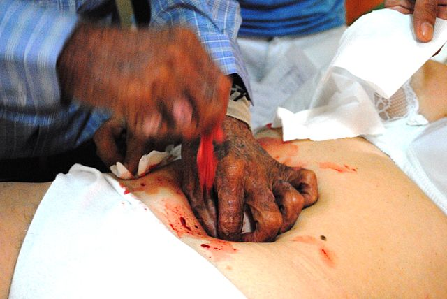 Psychic surgery practitioner pulling something red out o f a woman's navel