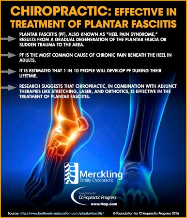 Chiropractic Is an Effective Treatment of Plantar Fasciitis