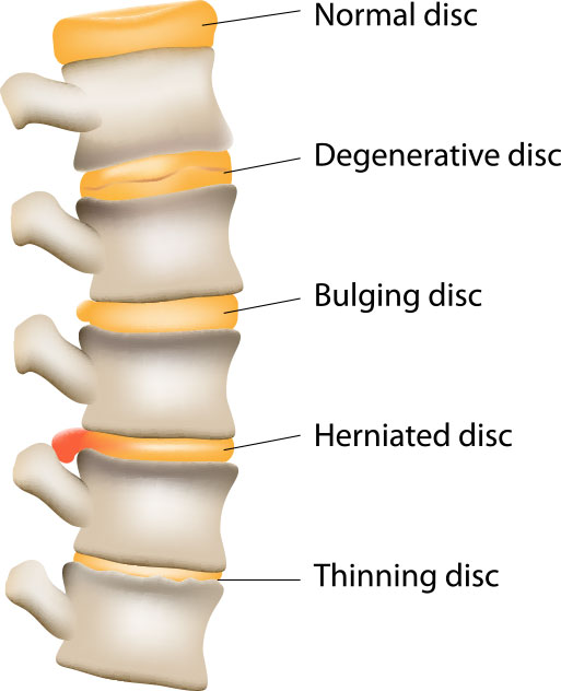 flexion distraction treats spinal disc disorders