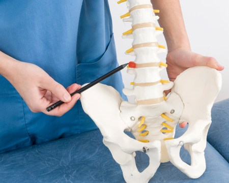 Herniated Disc Treatment Example