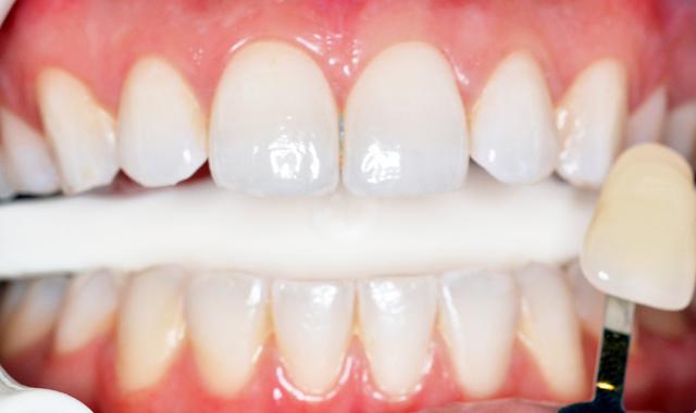 mercredie-blog-beaute-geneve-geneva-aesthetics-clinic-whitening-teeth-blanchiment-dentaire-dents