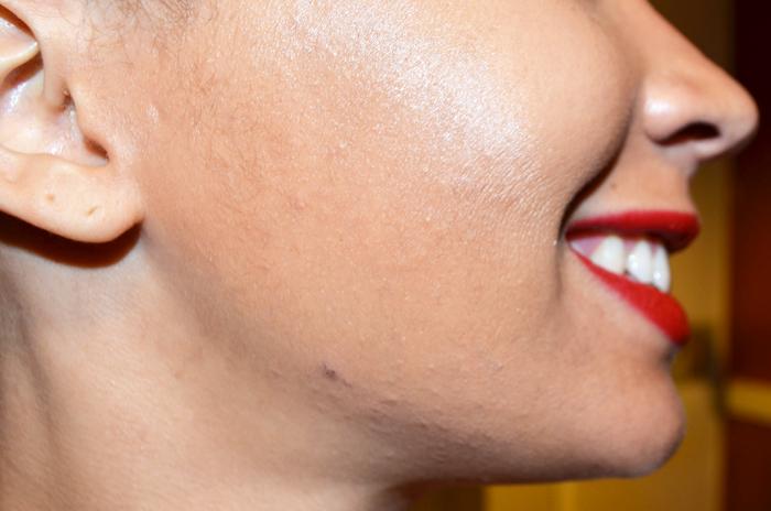 mercredie-blog-beaute-peeling-routine-belle-peau-acne-hormonale-avis-skin-eclipse-nadia-forever-laser-institut-geneve-medecine-esthetique-avant