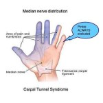 carpal_tunnel_syndrome1_border