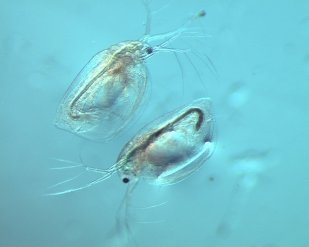 Zooplankton from a study pond