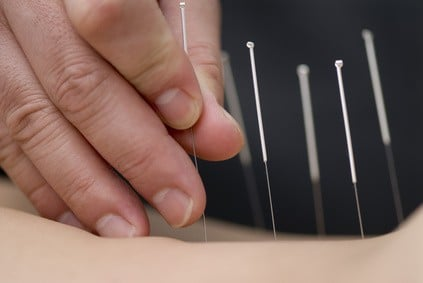Acupuntura | Acupuncture