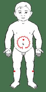 tuina-colico-lactante
