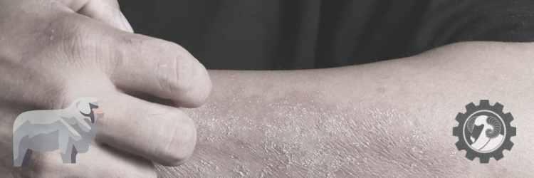 Man scratching dry arm
