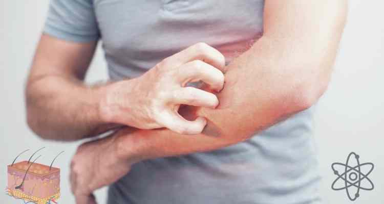 Man scratching itchy arm