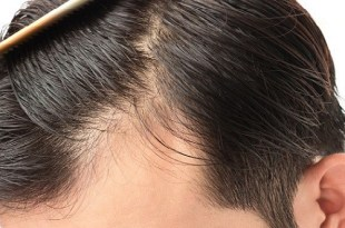 hair loss in the men