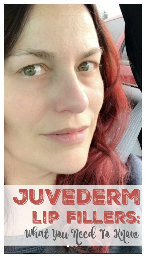 I Got Juvederm Lip Fillers – Here's What You Need To Know