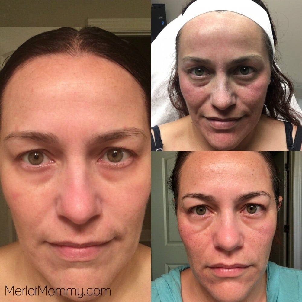 Is Halo Laser Treatment Worth It? Yes! My Experience with