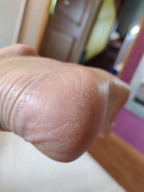 soin pieds dr pierre ricaud