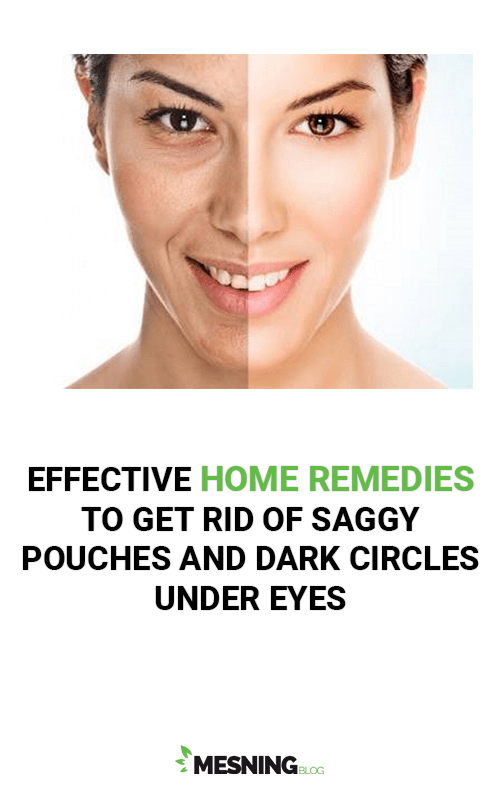 Effective Home remedies to get rid of Saggy Pouches and Dark Circles Under Eyes
