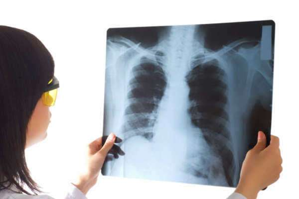Reddit gives you the best of the internet in one place. Mesothelioma Radiation Therapy - LAWS.com