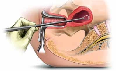 Кровь после рдв. Сколько длятся выделения у женщин после выскабливания полости матки
