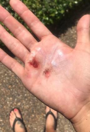 CrossFit torn hands