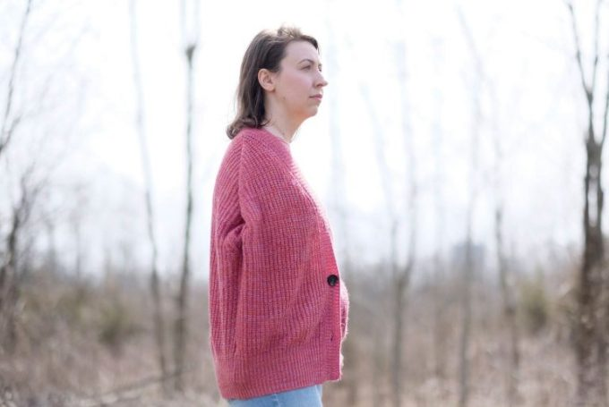 In 2007, Molly Millsop's right arm and shoulder were amputated after Ohio University's health center didn't recognize she had a rare flesh-eating bacterial infection. (Bonnie Jo Mount / The Washington Post)