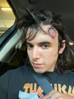 C.J. Montano, one week after attending a Los Angeles protest where the police shot a projectile at his head.(C.J. MONTANO)