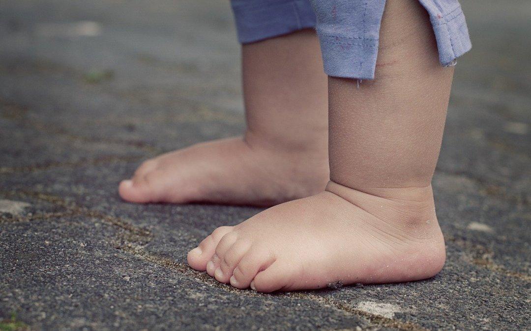 """Problemas de pies en niños: """"Alteraciones a nivel de alineaciones""""."""